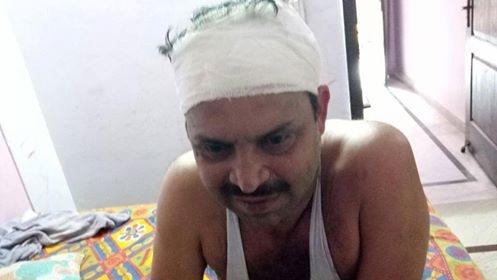 लूटपाट के शिकार पत्रकार आलोक